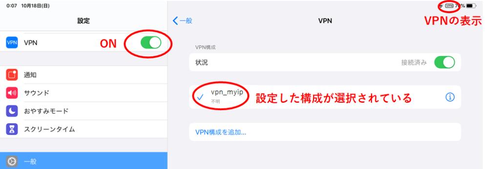 マイIPの設定方法(iPhone・iPad編)2